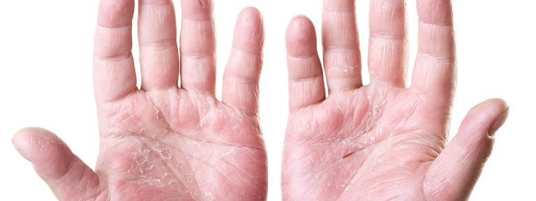 The unbearable itch of eczema